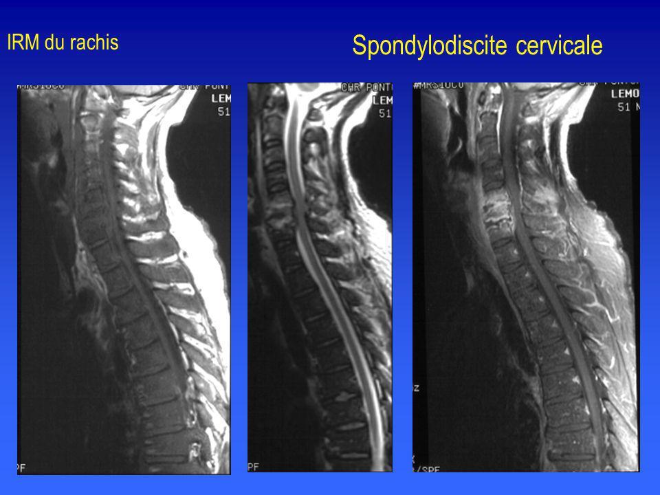 Spondylodiscite cervicale