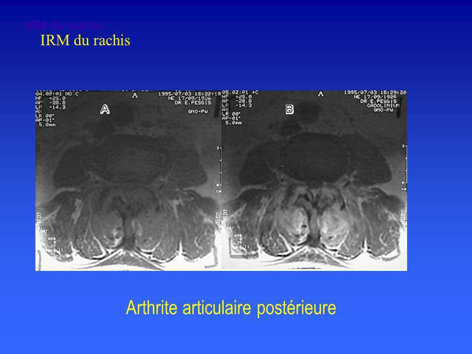 Arthrite articulaire postérieure