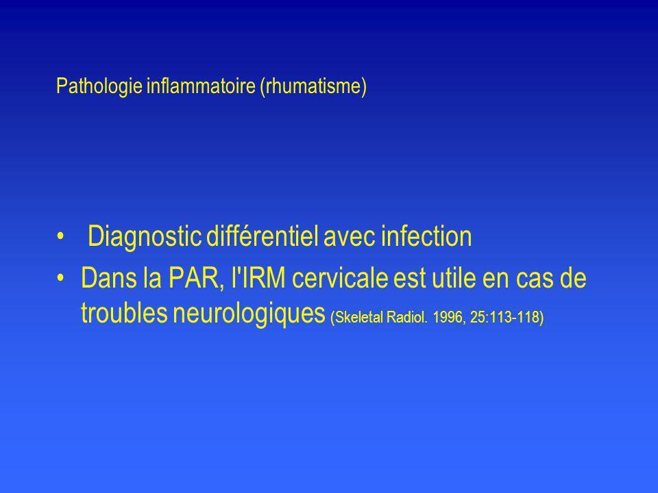 Pathologie inflammatoire (rhumatisme)
