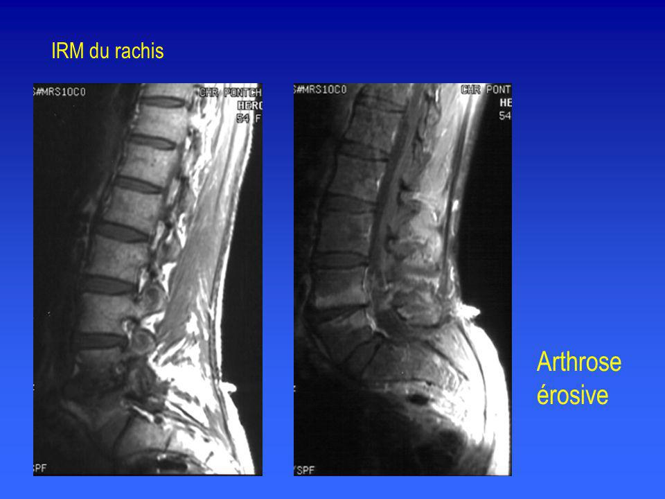 IRM du rachis Arthrose érosive
