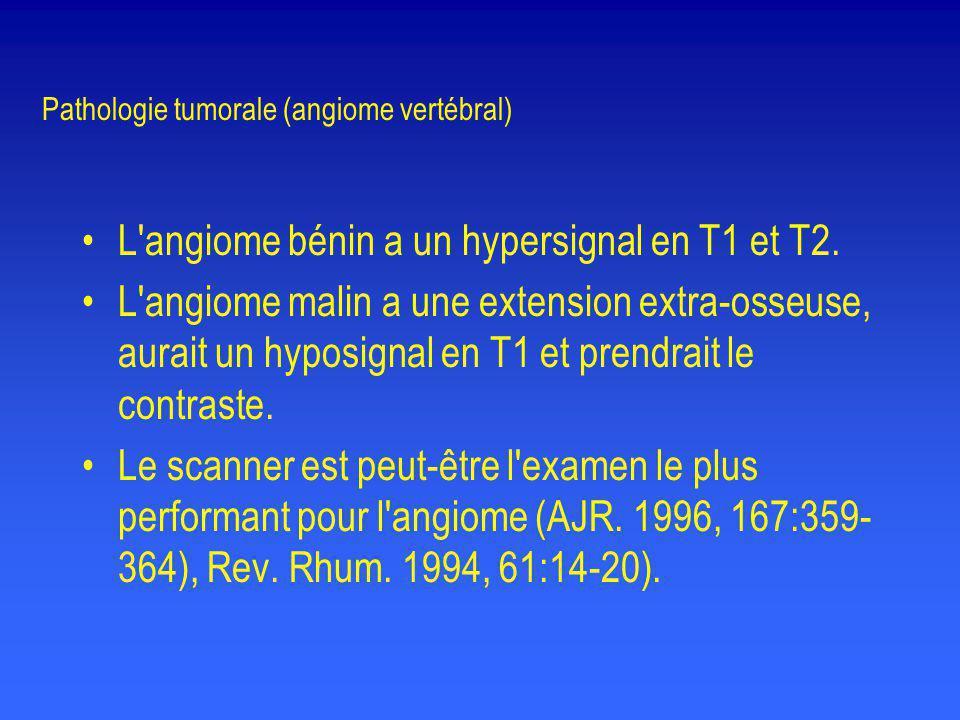 Pathologie tumorale (angiome vertébral)