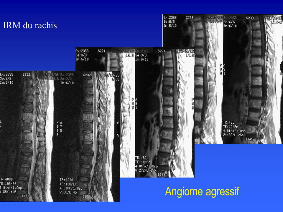 IRM du rachis Angiome agressif