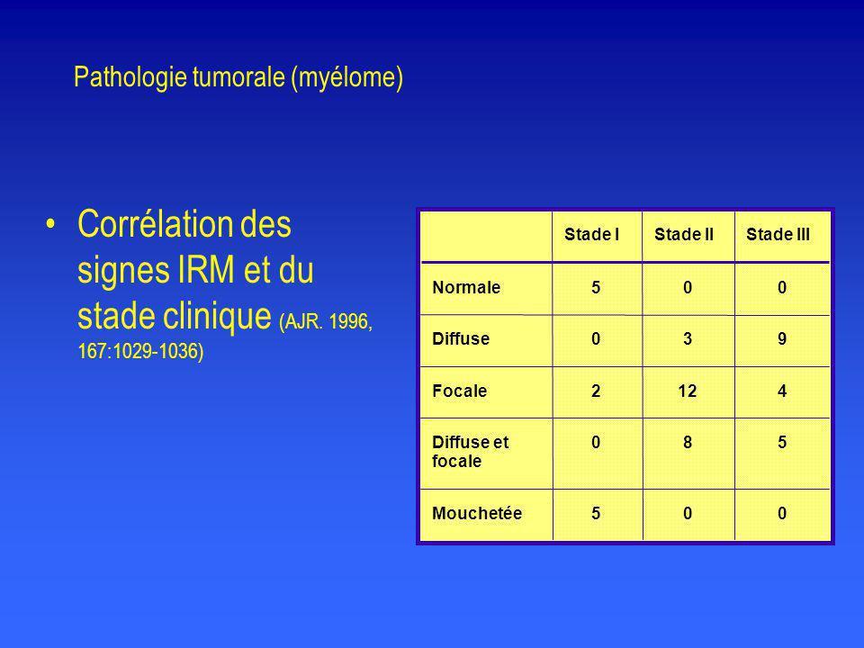 Pathologie tumorale (myélome)