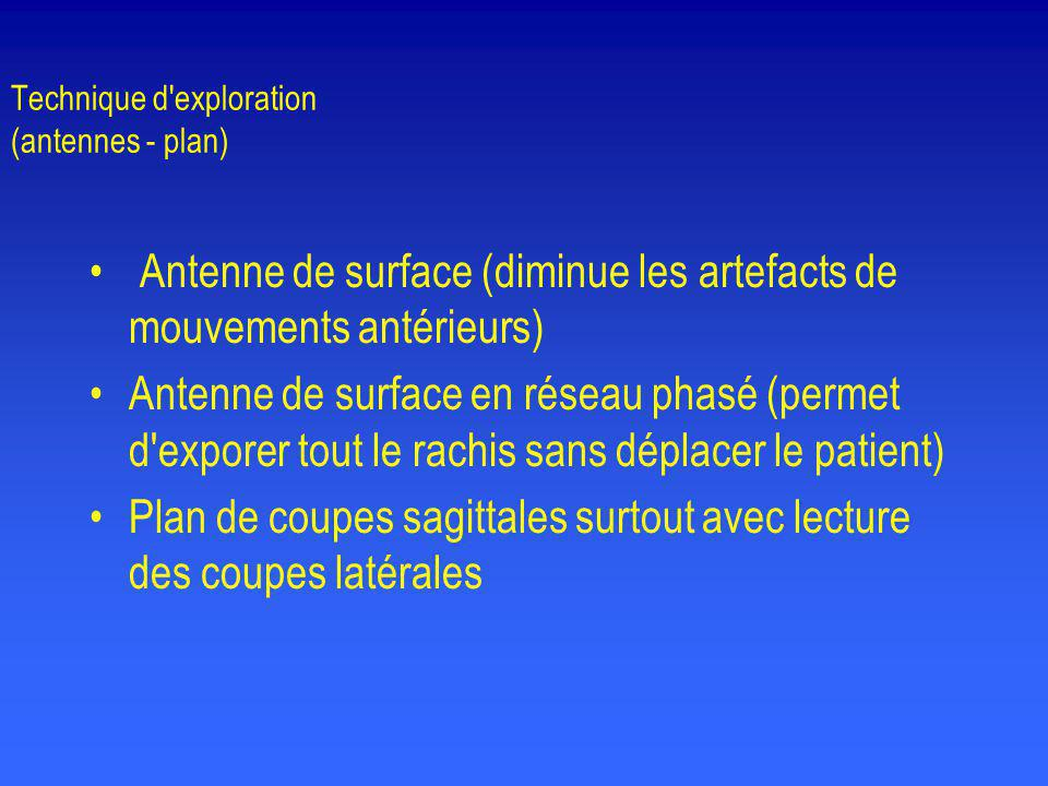 Technique d exploration (antennes - plan)