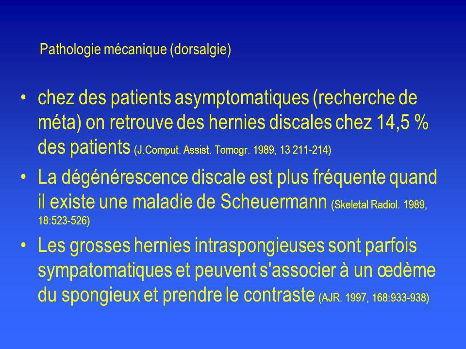 Pathologie mécanique (dorsalgie)