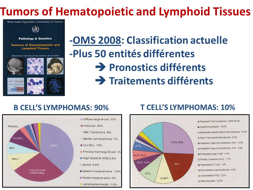 Tumors of Hematopoietic and Lymphoid Tissues