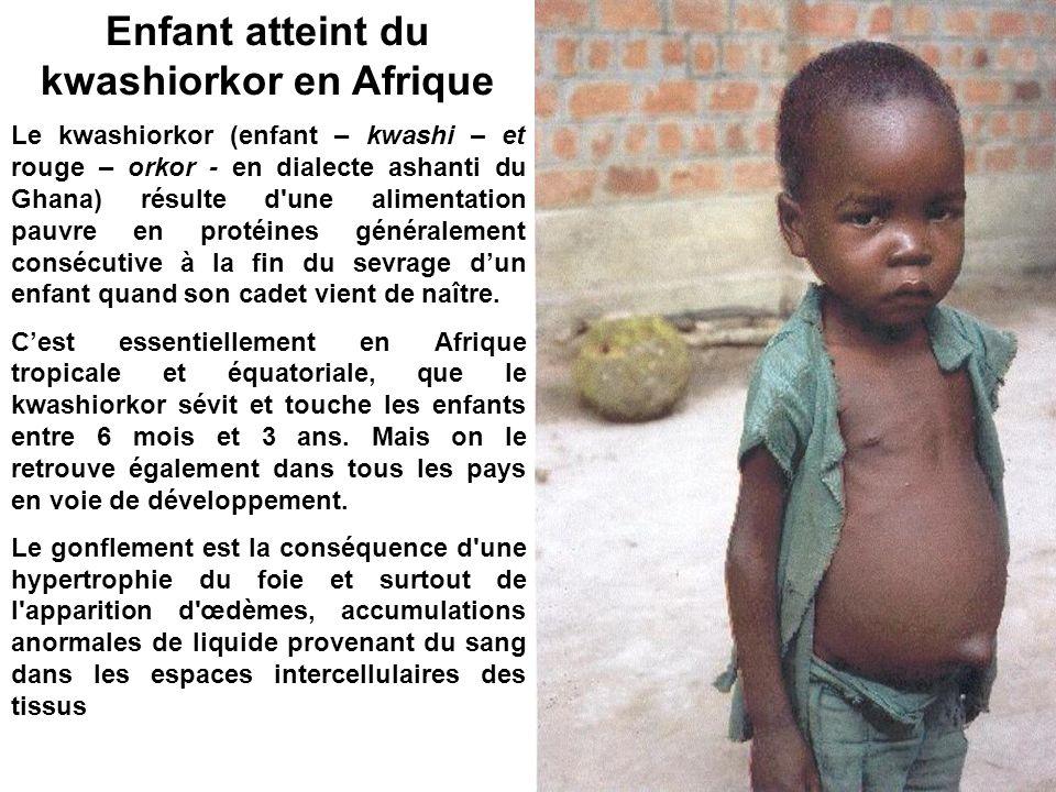 Enfant atteint du kwashiorkor en Afrique