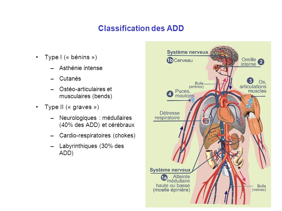 Classification des ADD