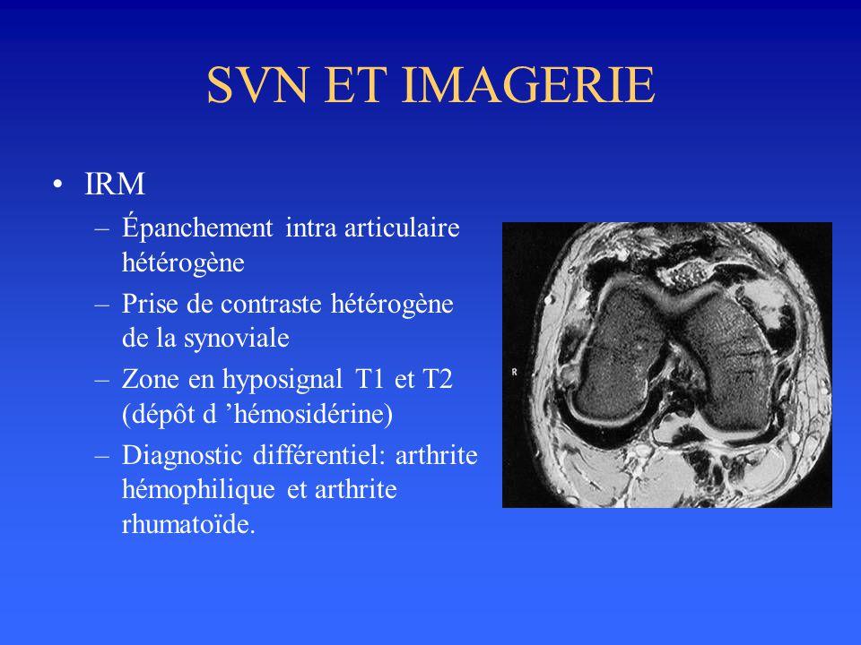 SVN ET IMAGERIE IRM Épanchement intra articulaire hétérogène
