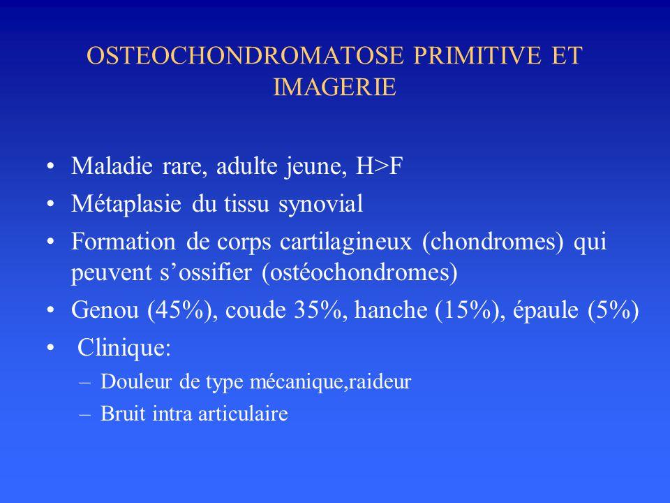 OSTEOCHONDROMATOSE PRIMITIVE ET IMAGERIE