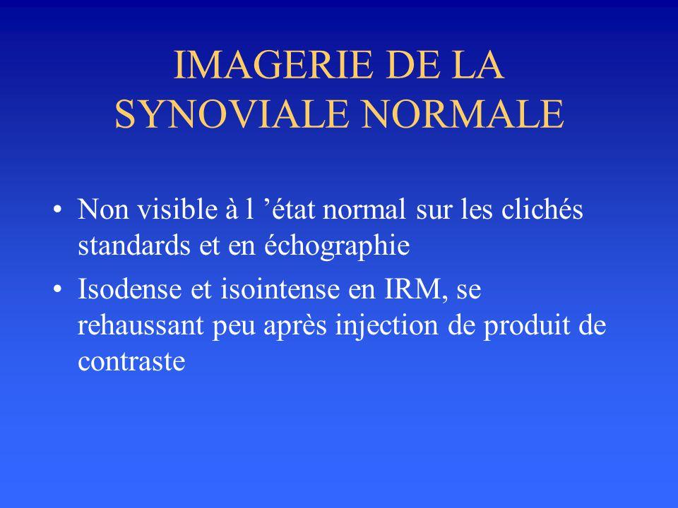 IMAGERIE DE LA SYNOVIALE NORMALE