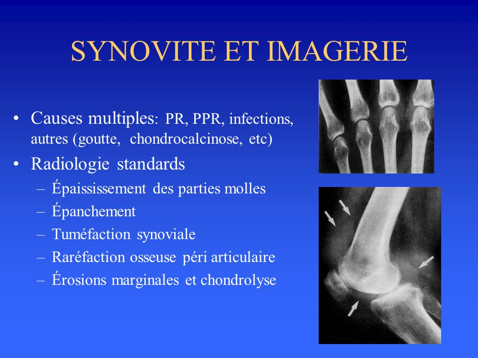 SYNOVITE ET IMAGERIE Causes multiples: PR, PPR, infections, autres (goutte, chondrocalcinose, etc)