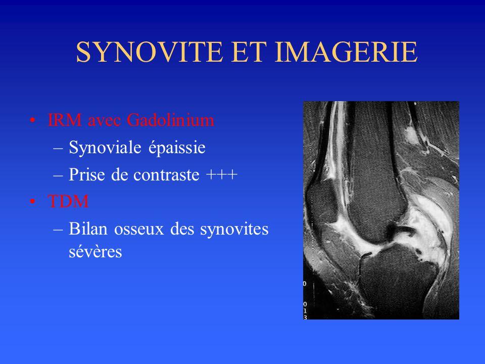 SYNOVITE ET IMAGERIE IRM avec Gadolinium Synoviale épaissie