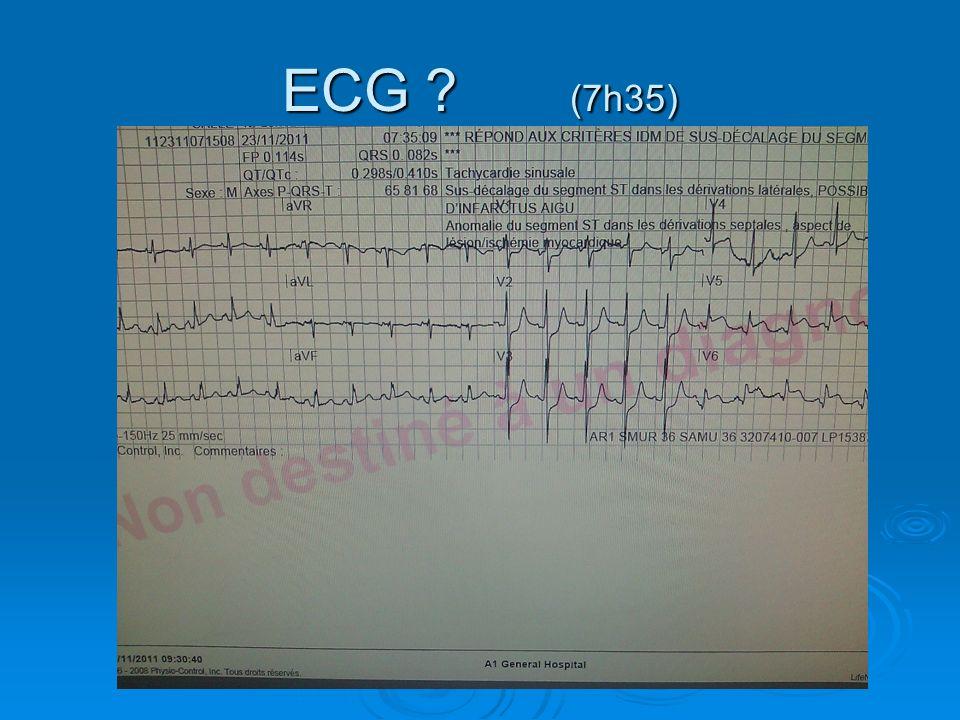 ECG (7h35)