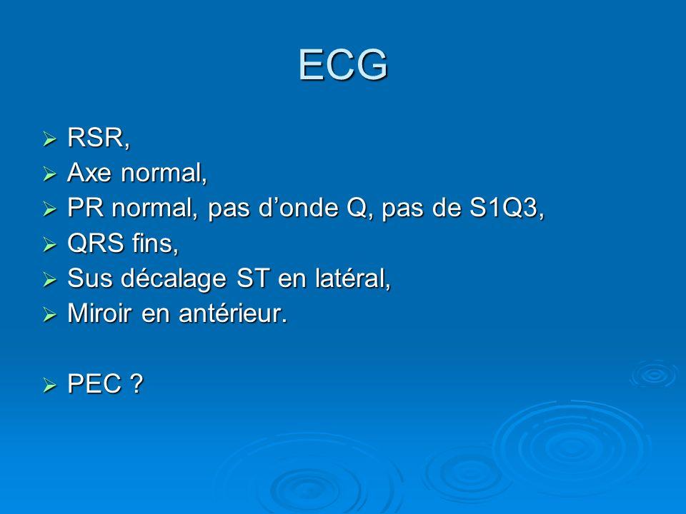 ECG RSR, Axe normal, PR normal, pas d'onde Q, pas de S1Q3, QRS fins,