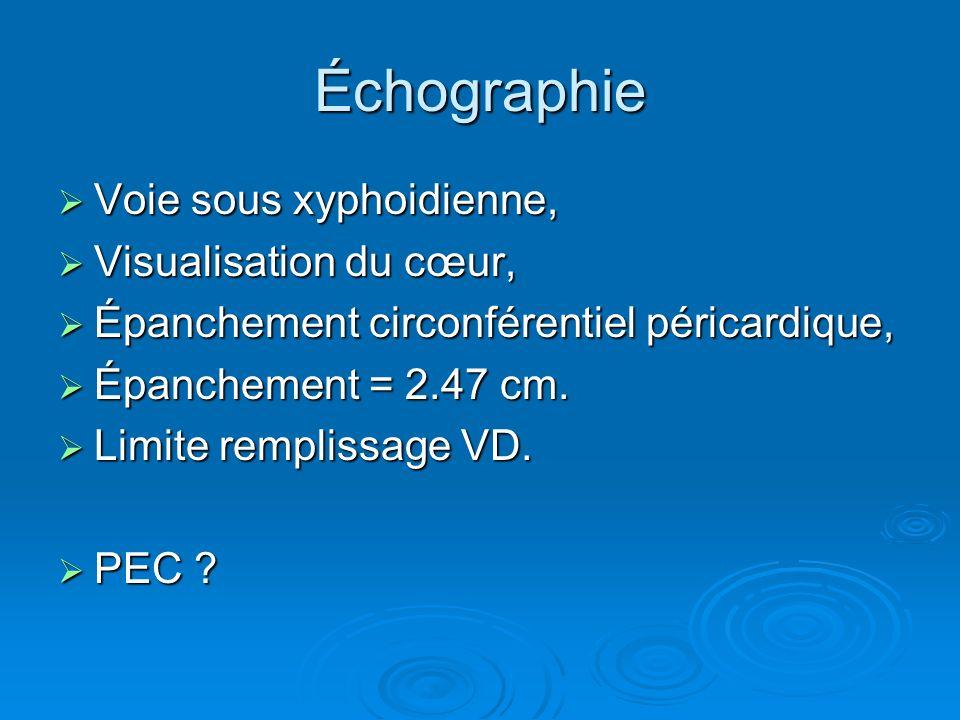 Échographie Voie sous xyphoidienne, Visualisation du cœur,
