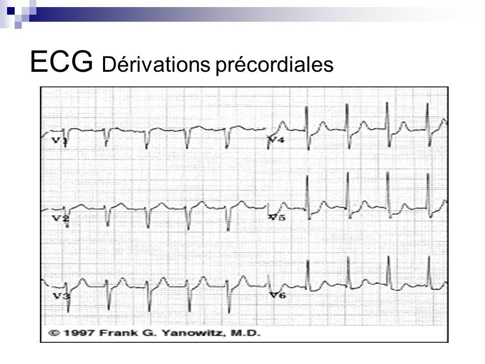 ECG Dérivations précordiales