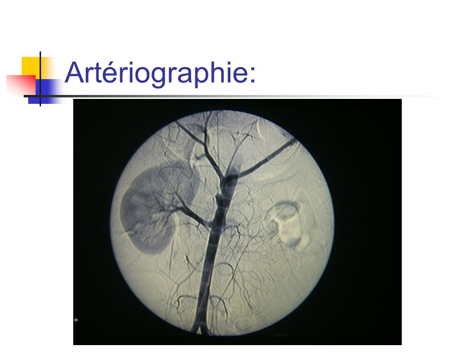 Artériographie: