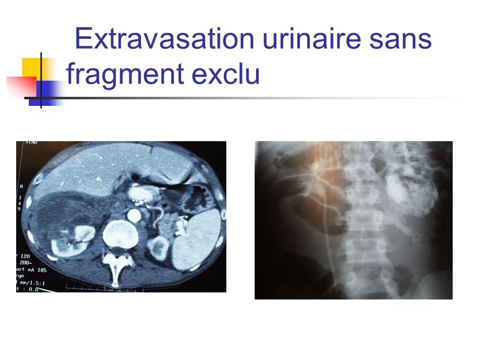 Extravasation urinaire sans fragment exclu
