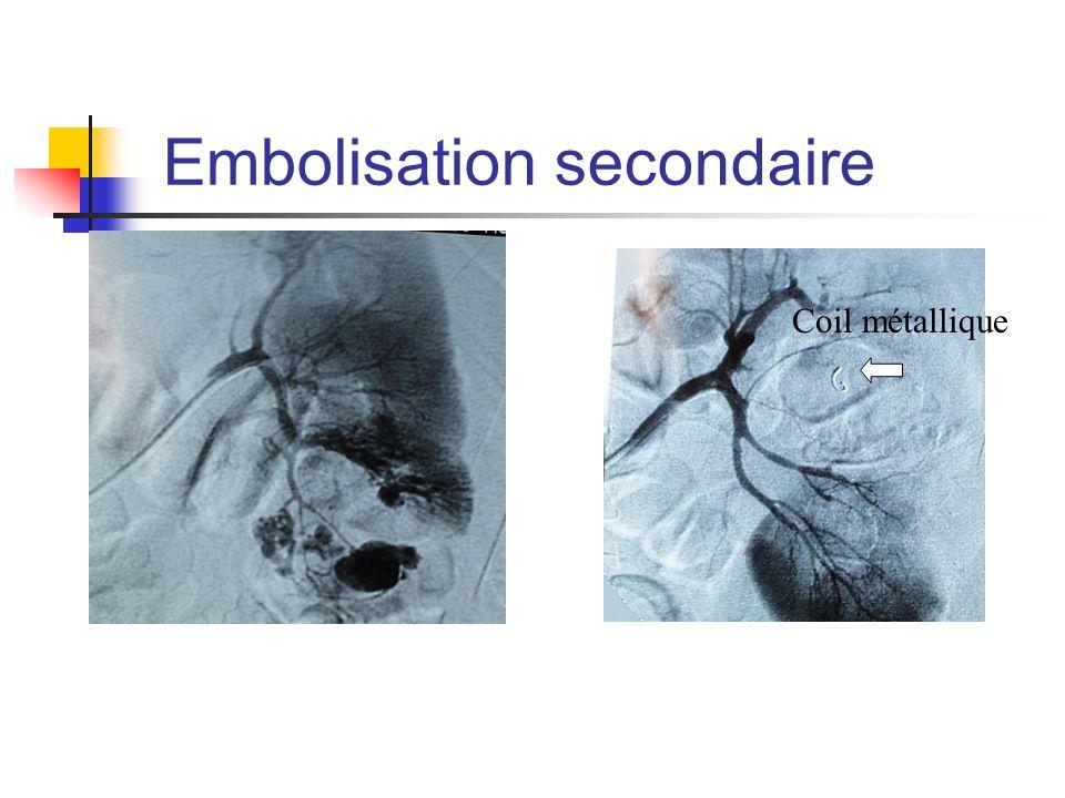 Embolisation secondaire