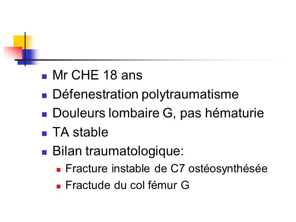 Défenestration polytraumatisme Douleurs lombaire G, pas hématurie