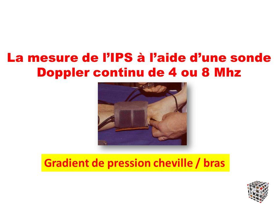 La mesure de l'IPS à l'aide d'une sonde Doppler continu de 4 ou 8 Mhz