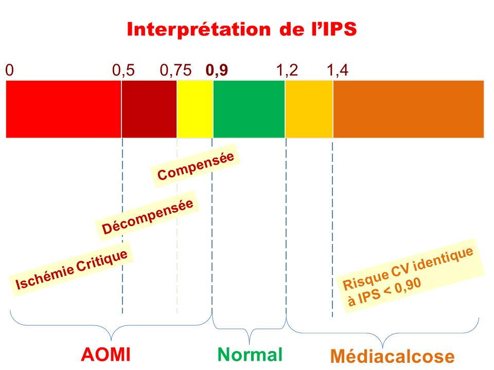 Interprétation de l'IPS
