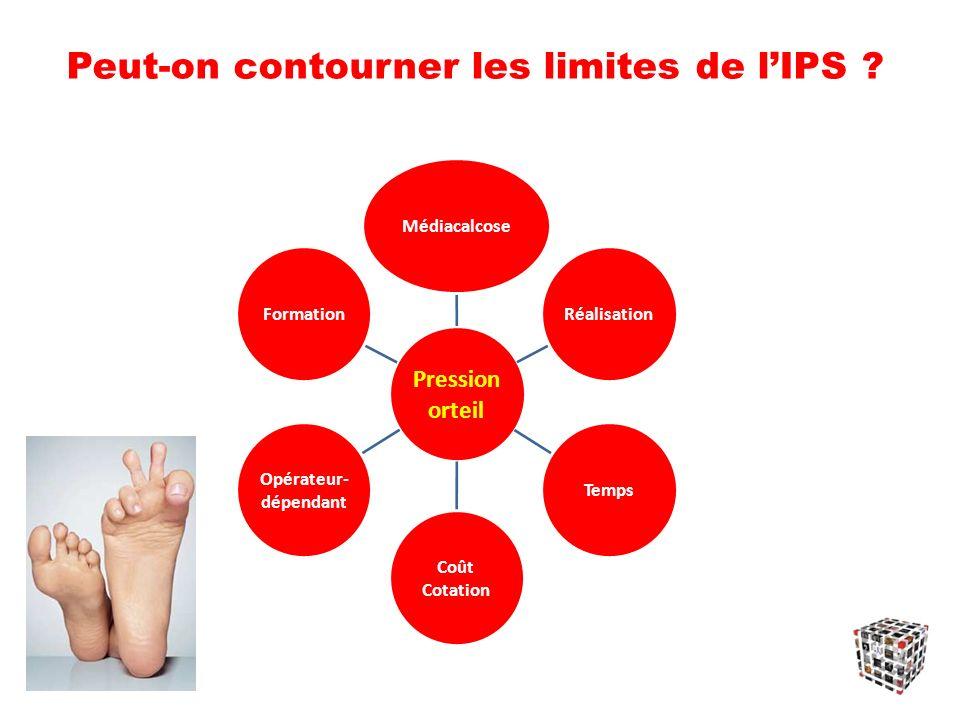 Peut-on contourner les limites de l'IPS