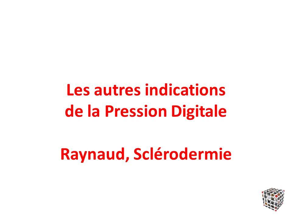 Les autres indications de la Pression Digitale Raynaud, Sclérodermie