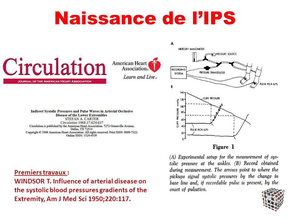 Naissance de l'IPS Premiers travaux : WINDSOR T. Influence of arterial disease on the systolic blood pressures gradients of the.