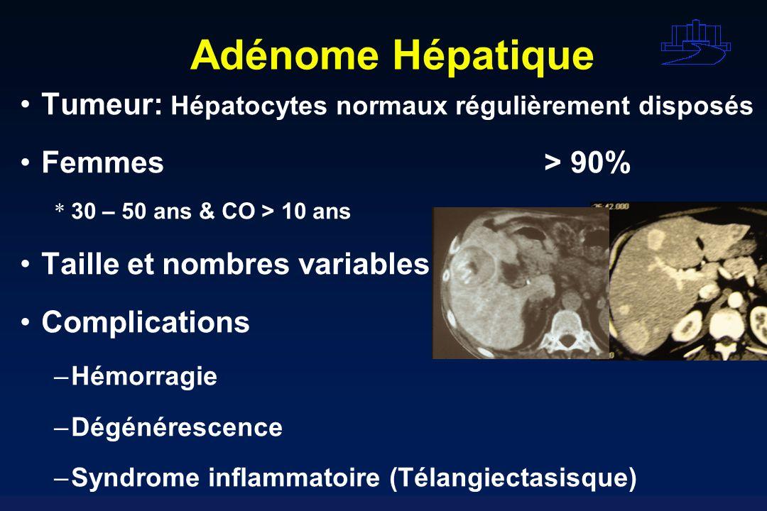 Adénome Hépatique Tumeur: Hépatocytes normaux régulièrement disposés