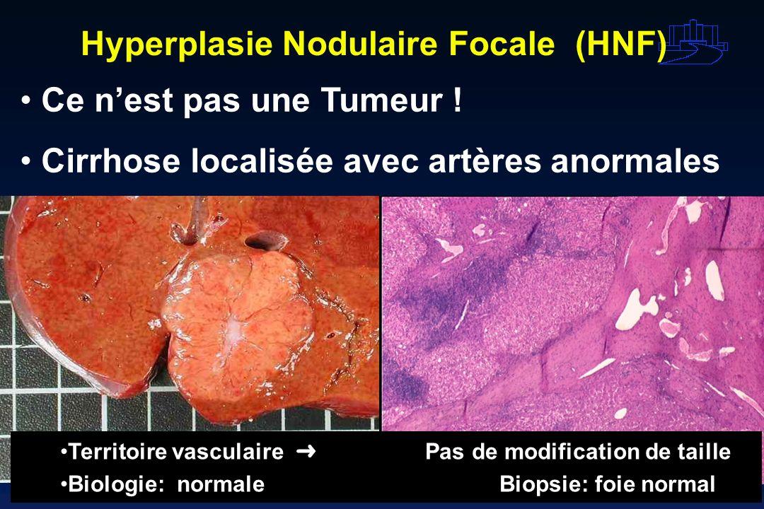 Hyperplasie Nodulaire Focale (HNF)