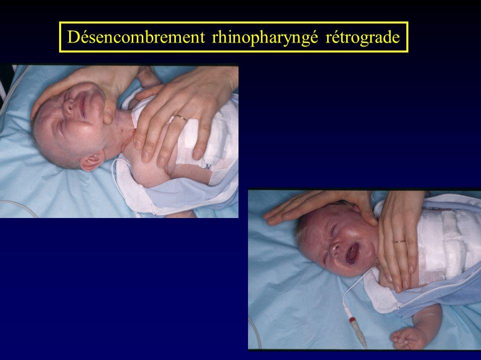 Désencombrement rhinopharyngé rétrograde