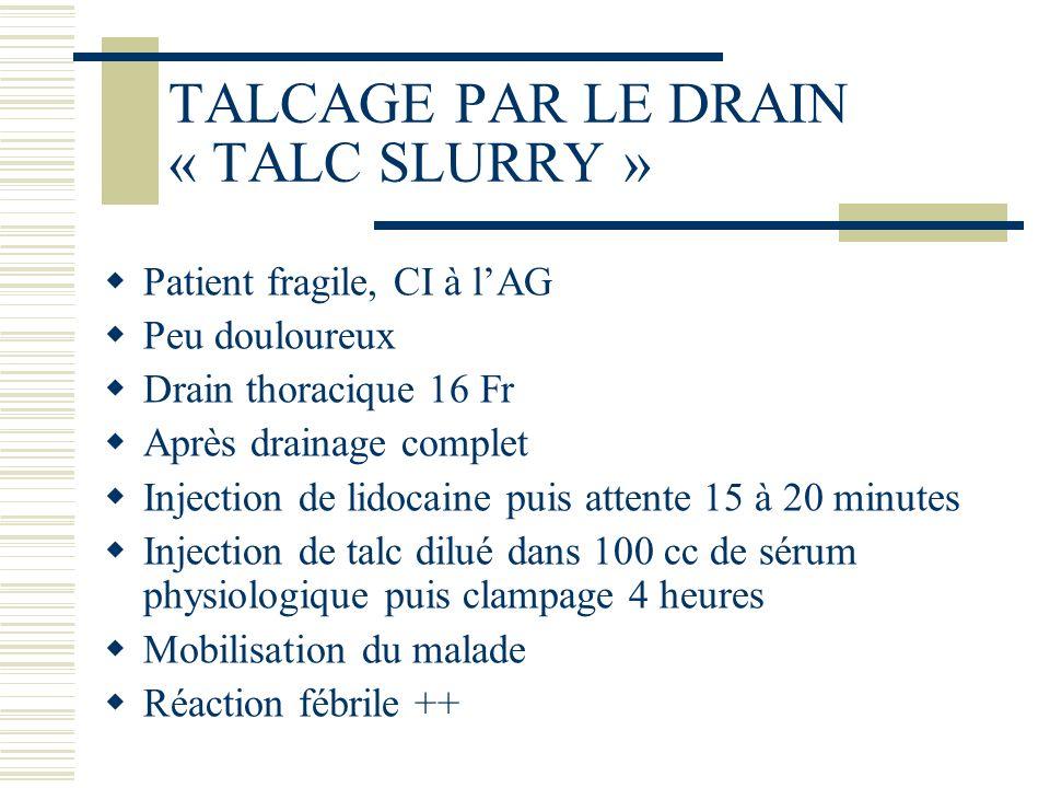 TALCAGE PAR LE DRAIN « TALC SLURRY »
