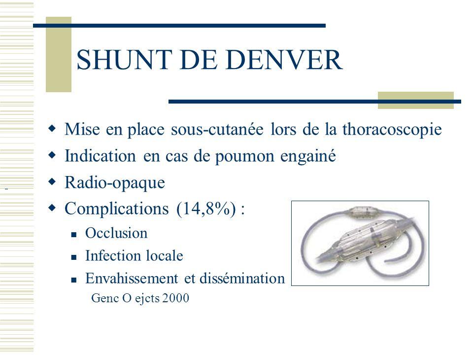 SHUNT DE DENVER Mise en place sous-cutanée lors de la thoracoscopie