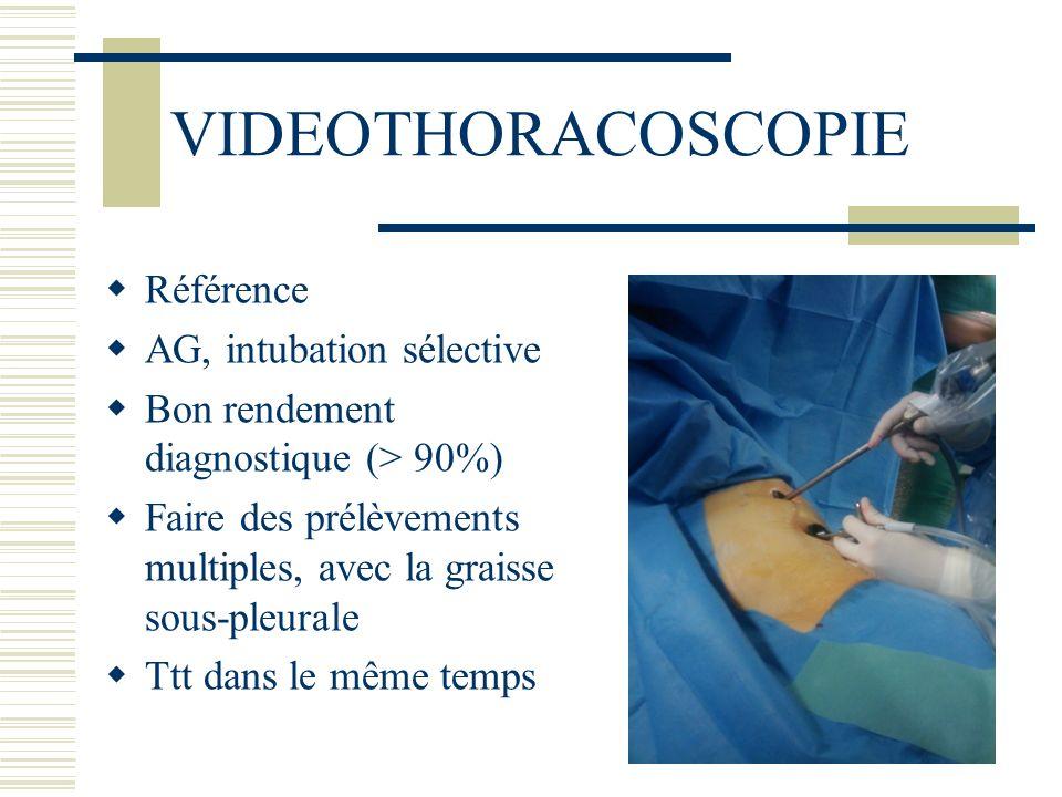 VIDEOTHORACOSCOPIE Référence AG, intubation sélective