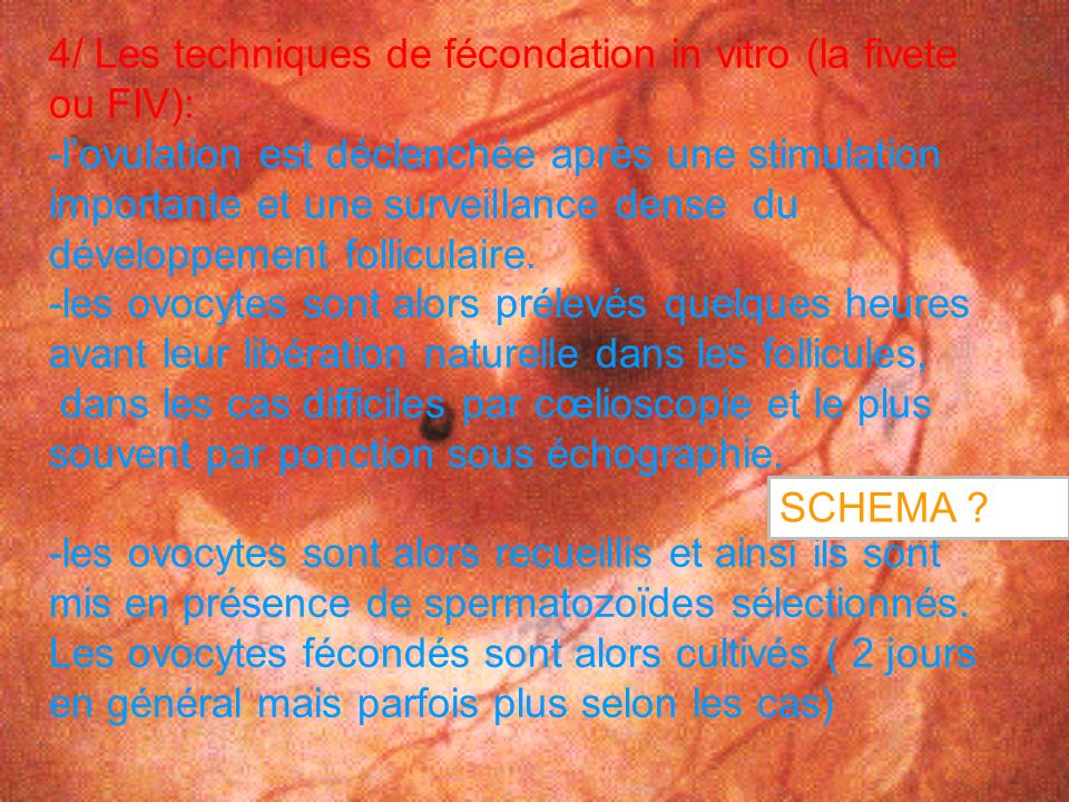4/ Les techniques de fécondation in vitro (la fivete