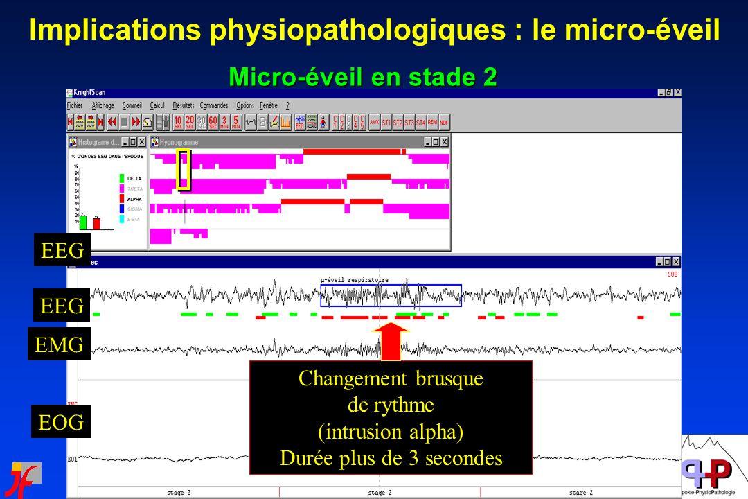 Implications physiopathologiques : le micro-éveil