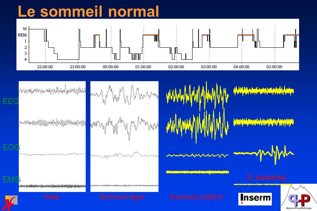 Le sommeil normal EEG EOG EMG S. paradoxal Veille Sommeil léger