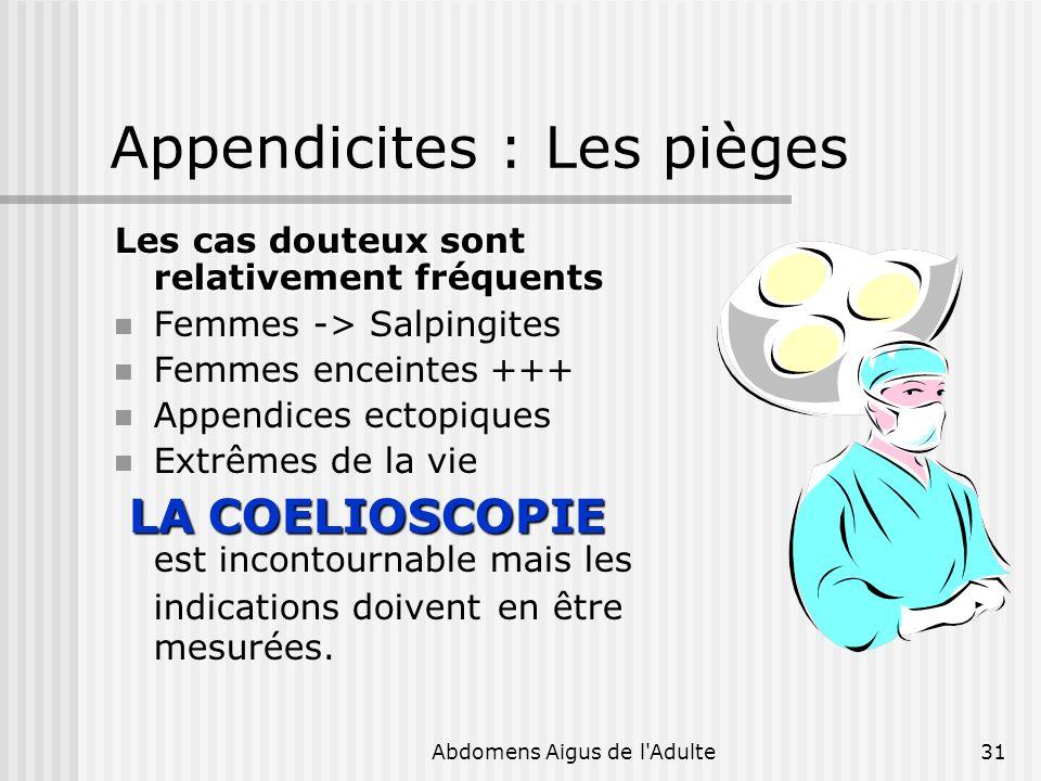 Appendicites : Les pièges