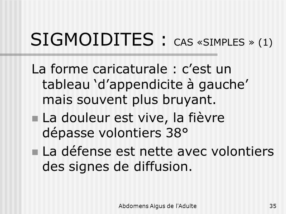 SIGMOIDITES : CAS «SIMPLES » (1)