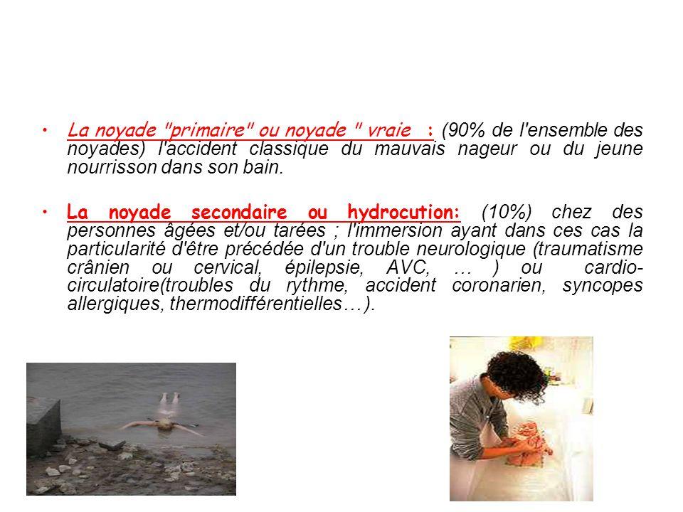 La noyade primaire ou noyade vraie : (90% de l ensemble des noyades) l accident classique du mauvais nageur ou du jeune nourrisson dans son bain.