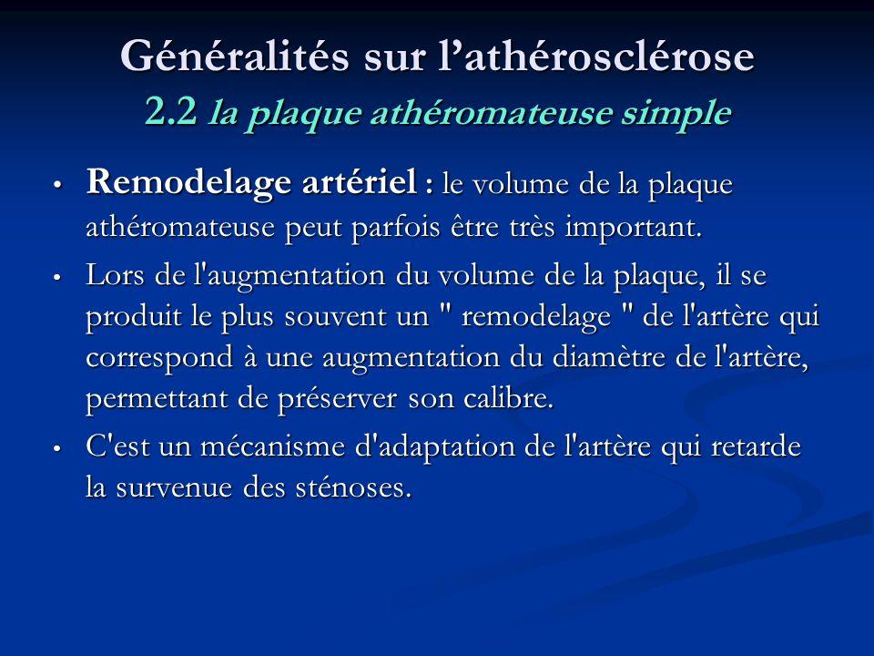 Généralités sur l'athérosclérose 2.2 la plaque athéromateuse simple