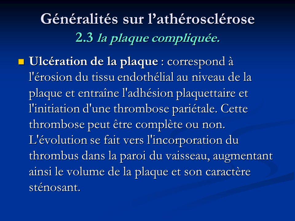 Généralités sur l'athérosclérose 2.3 la plaque compliquée.