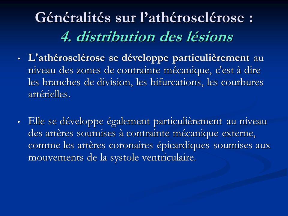 Généralités sur l'athérosclérose : 4. distribution des lésions