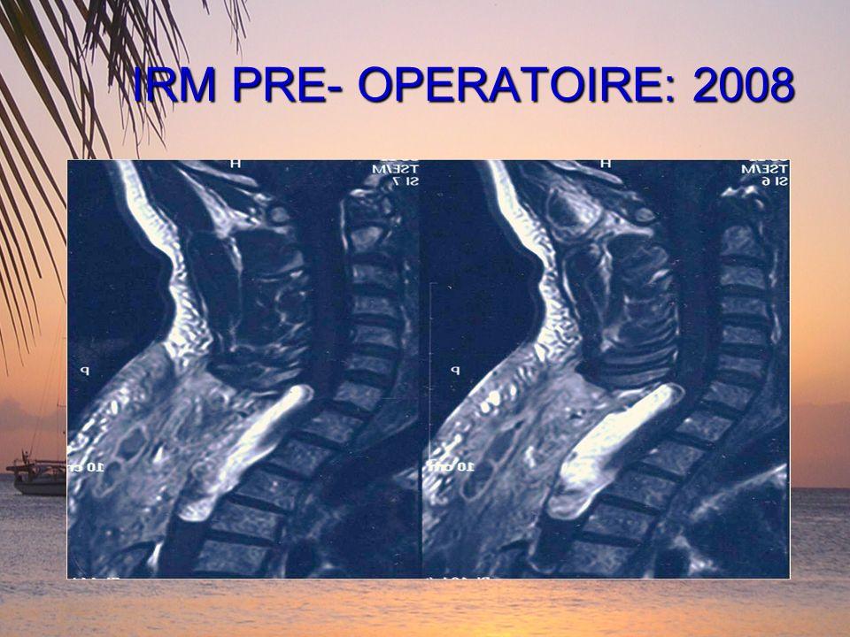 IRM PRE- OPERATOIRE: 2008
