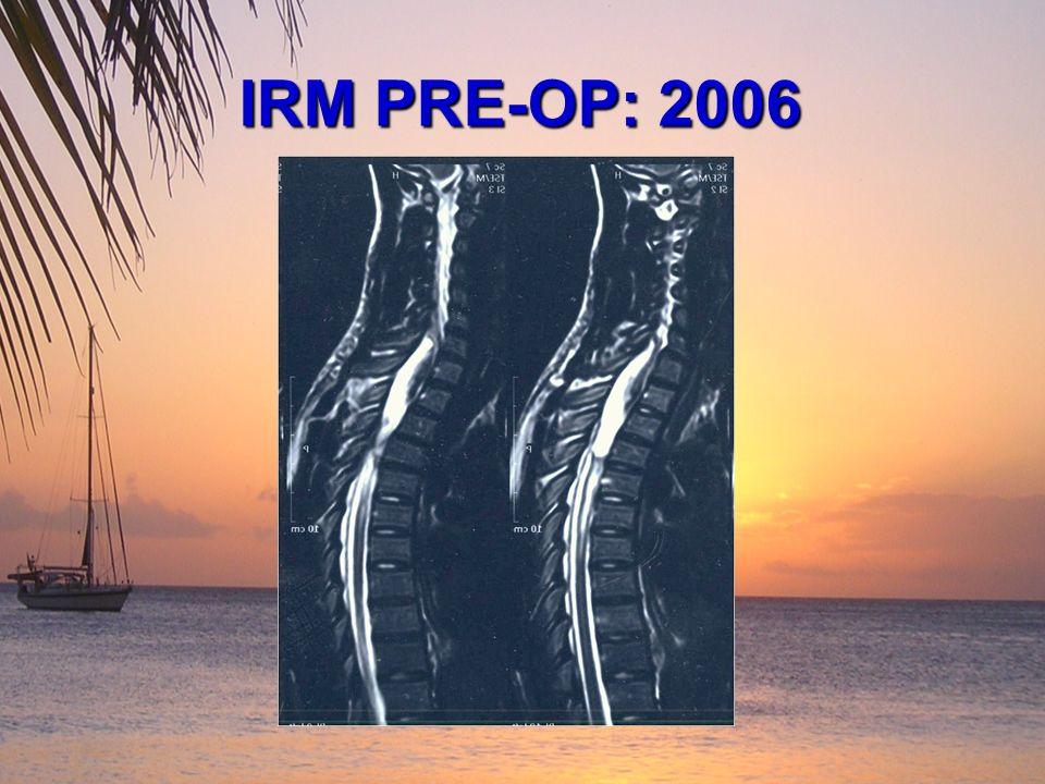 IRM PRE-OP: 2006