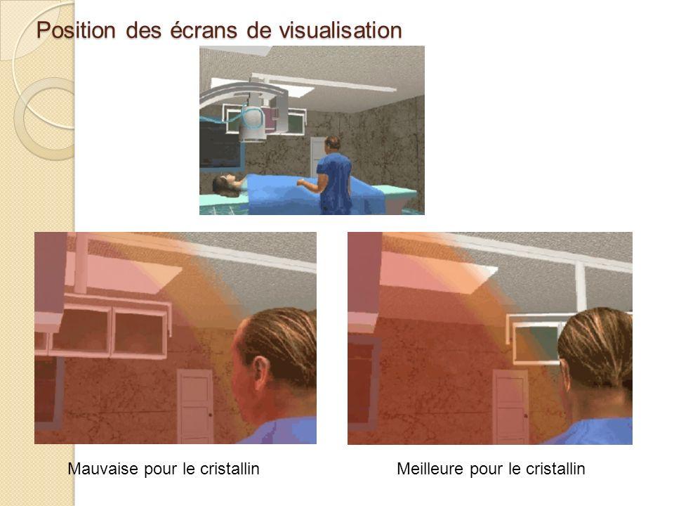 Position des écrans de visualisation