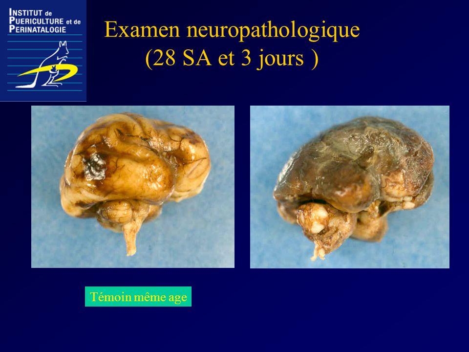 Examen neuropathologique (28 SA et 3 jours )