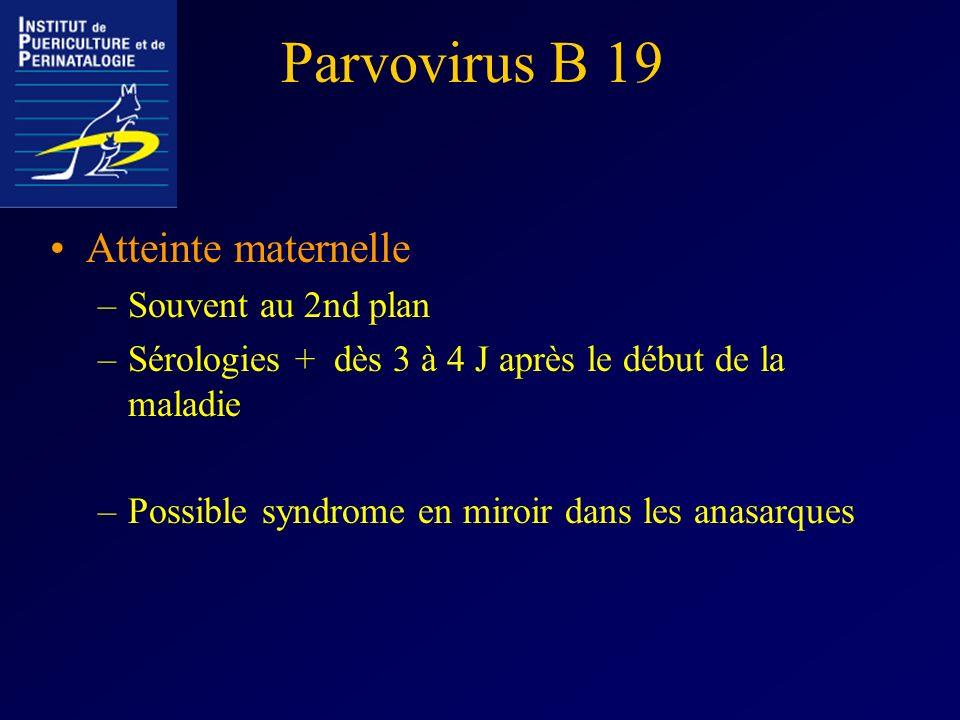 Parvovirus B 19 Atteinte maternelle Souvent au 2nd plan